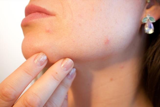 Cuidados de la cara para eliminar el acné