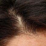 Problemas en el cuero cabelludo: Tipos de alopecia