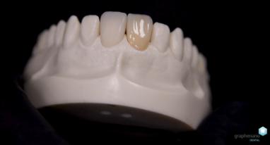 Grapheando Dental, la empresa española que revoluciona la odontología
