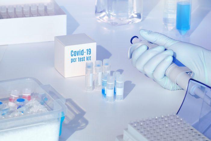 España ha realizado más de 2,2 millones de PCR desde el inicio de la epidemia
